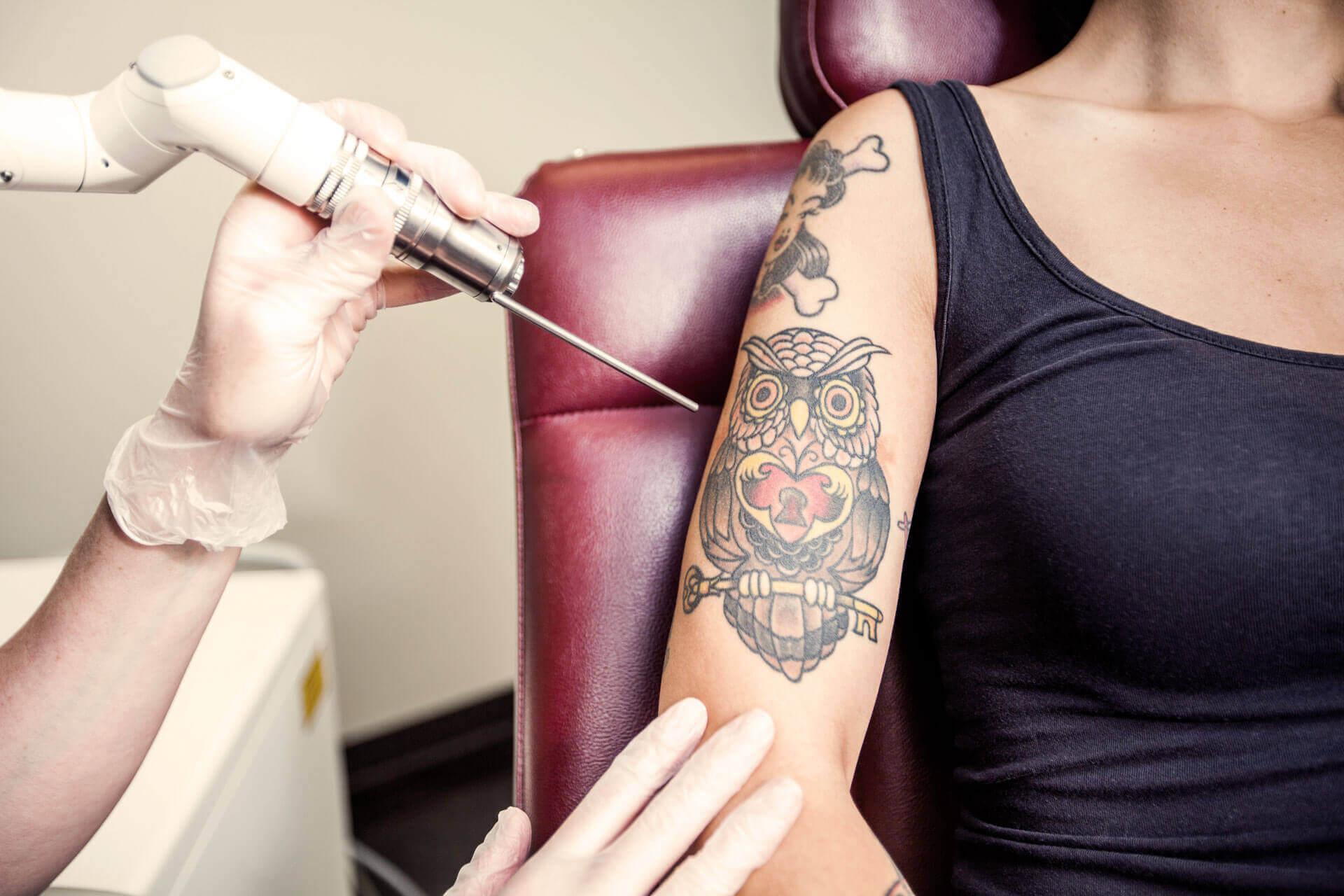 Laser Tattooentfernung in München bei Cleanskin