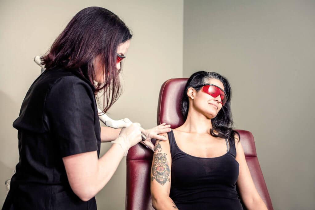 Kosten der Tattooentfernung bei Cleanskin