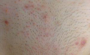 Stoppeln Und Eingewachsene Haare Im Intimbereich Vermeiden
