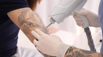 Tattooentfernung mit Laser - die 10 häufigsten Fragen