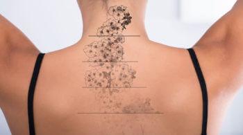 Entfernung eines Tattoos Verlauf