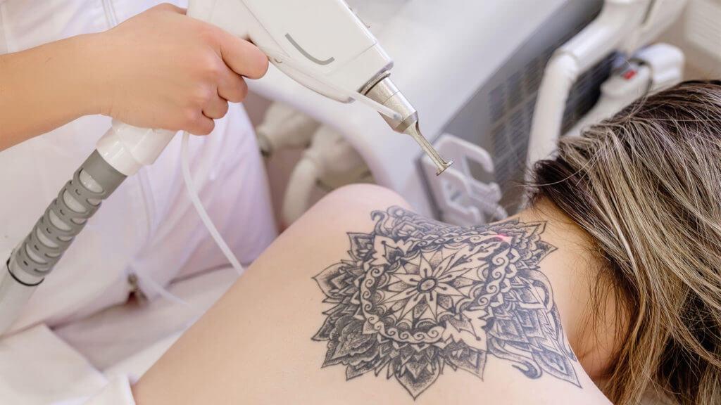 Entfernung Tattoo mit Laser