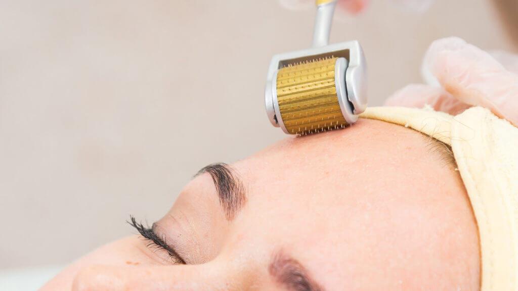 Microneedling hilft gegen Falten