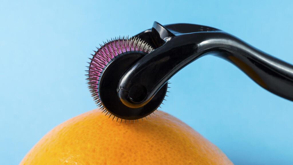 Dermaroller gegen Haarausfall