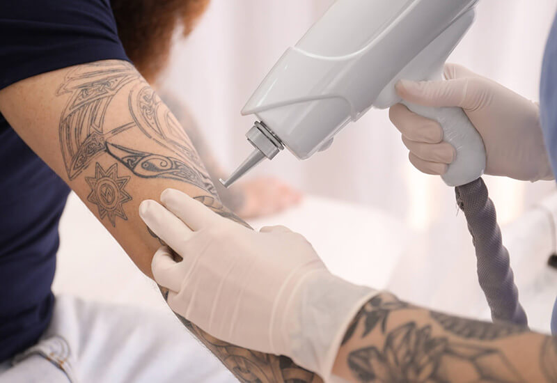 Tattooentfernung München - wieder frei fühlen